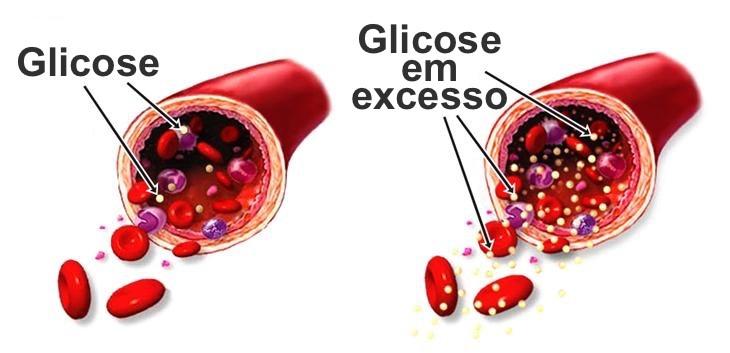 Glicose em Excesso